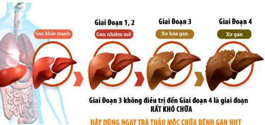 giai doan gan nhiem mo 1